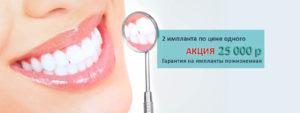 action implant 300x113 - Акция: 2 импланта по цене одного!