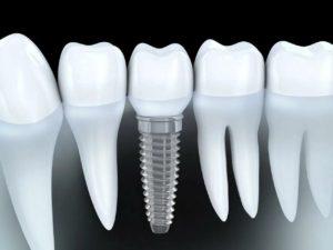 implantatsiya zubov 300x225 - Имплантация