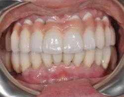protezirovanie-zubov-03