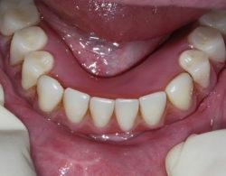 protezirovanie-zubov-04