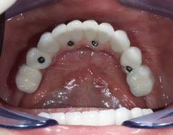 protezirovanie-zubov-05