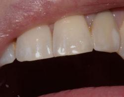protezirovanie-zubov-06