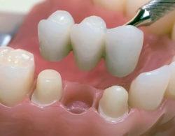 protezirovanie-zubov-07