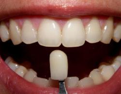protezirovanie-zubov-08