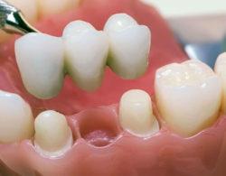 protezirovanie-zubov-09