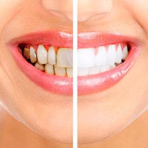 chistka zubnogo kamny 300x300 - chistka-zubnogo-kamny
