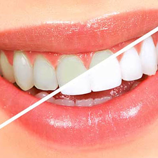 ftorirovanie zubov - Глубокое фторирование