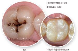 germetizaciy fissur 300x196 - germetizaciy-fissur