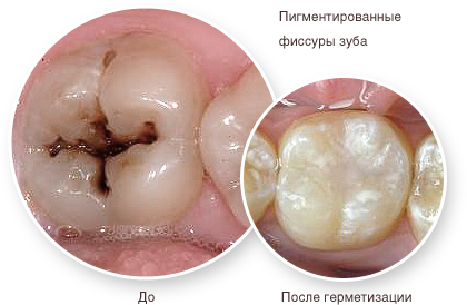 germetizaciy-fissur