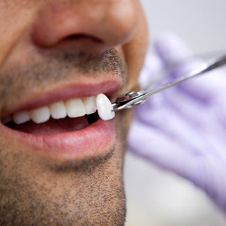 porcelain-veneers-fitting