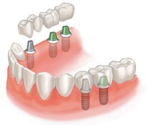 protezirovanie zubov 300x258 - protezirovanie-zubov