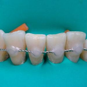 shinirovaniya zubov 300x300 - shinirovaniya-zubov