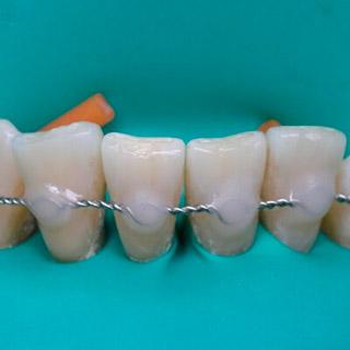 shinirovaniya-zubov