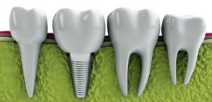 implant classic 300x144 - implant-classic