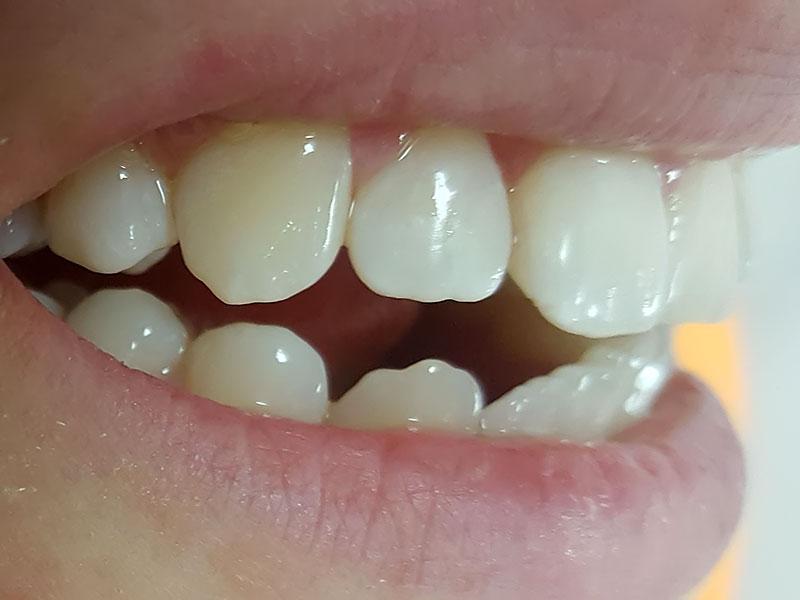 Моделирование и реставрация зубов