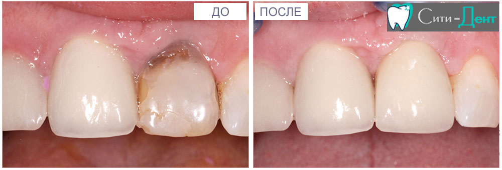 этапы импланты зубов с фото