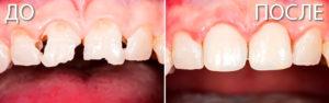 teeth restoration2 300x94 - реставрация зубов