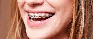 brackets 03 300x125 - brackets-03