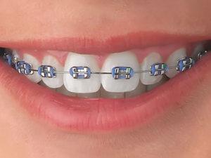 brackets 07 300x225 - brackets-07