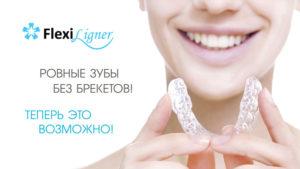 flexiligner02 2 300x169 - flexiligner02 (2)