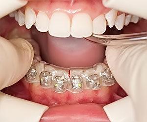 ortlech 300x250 - Ортодонтическое лечение