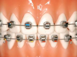 bezligaturnye braces 01 300x225 - bezligaturnye-braces-01
