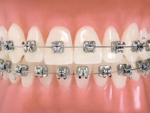 bezligaturnye braces 02 300x225 - bezligaturnye-braces-02