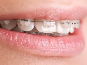bezligaturnye braces 03 300x225 - bezligaturnye-braces-03