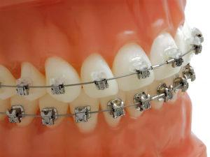 bezligaturnye braces 04 300x225 - bezligaturnye-braces-04