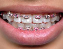 bezligaturnye-braces-05