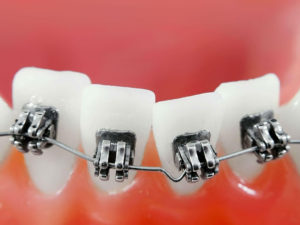 bezligaturnye braces 06 300x225 - bezligaturnye-braces-06