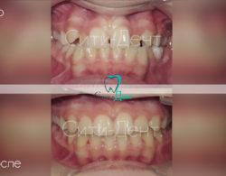 Зубы до и после ношения брекетов