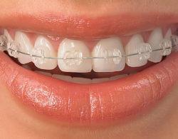 ceramic-braces-01
