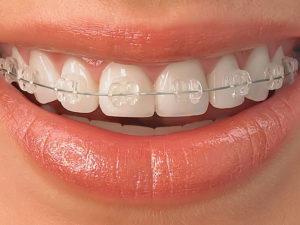 ceramic braces 01 300x225 - ceramic-braces-01
