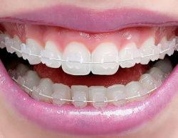 ceramic-braces-02