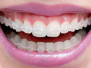 ceramic braces 02 300x225 - ceramic-braces-02
