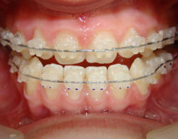 ceramic-braces-03