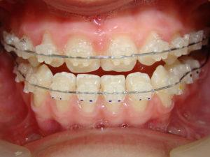 ceramic braces 03 300x225 - ceramic-braces-03