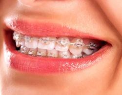 ceramic-braces-04