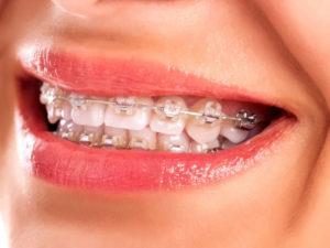 ceramic braces 04 300x225 - ceramic-braces-04