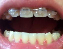 ceramic-braces-05