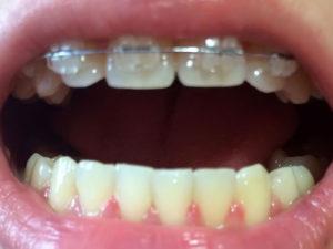 ceramic braces 05 300x225 - ceramic-braces-05