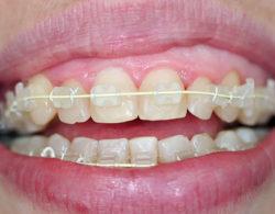 ceramic-braces-06