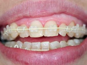 ceramic braces 06 300x225 - ceramic-braces-06