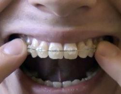 ceramic-braces-07