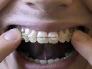 ceramic braces 07 300x225 - ceramic-braces-07