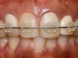 ceramic braces 08 300x225 - ceramic-braces-08