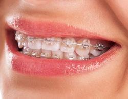 ceramic-braces-09