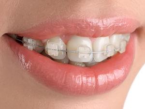 ceramic braces 300x225 - Керамические брекеты