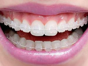 invisible braces 02 300x225 - invisible-braces-02